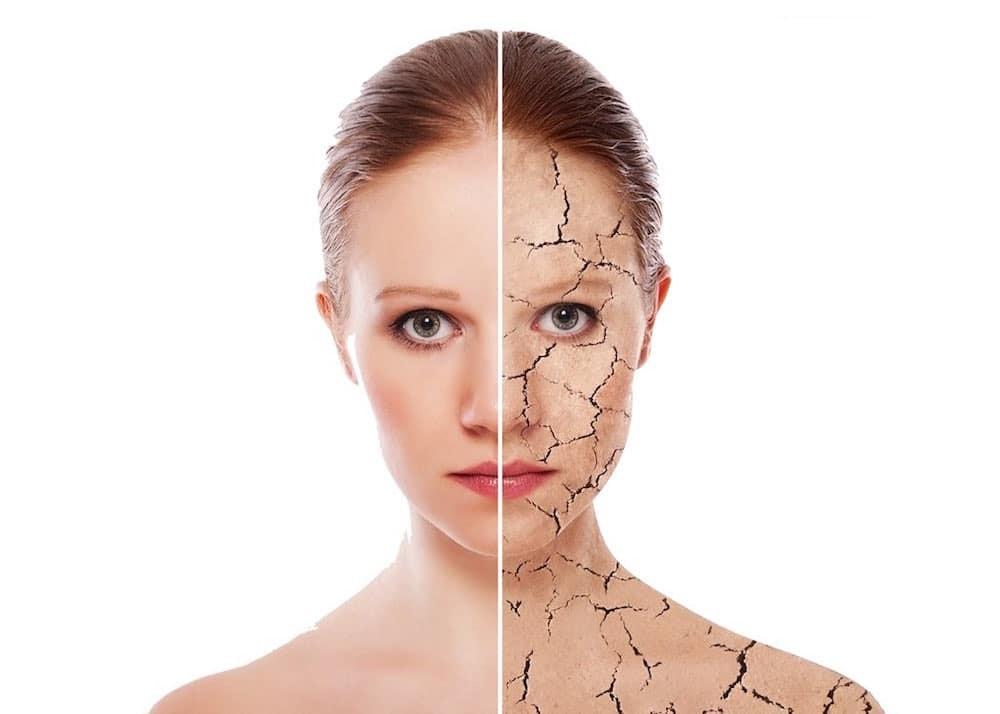 Treating Dry Skin Understanding The Causes Of Dry Skin